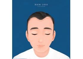 治疗脱发的广告