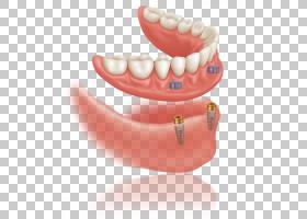 口部卡通,嘴唇,嘴,下颚,口香糖,牙科修复,手术,美容牙科,牙科旅游