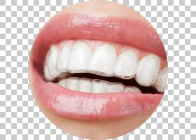 口部卡通,微笑,嘴,下颚,嘴唇,牙科修复,普通牙科学会,牙齿美白,牙