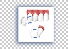 病人卡通,微笑,嘴唇,手指,嘴,手,下颚,口香糖,病人,牙科手术,牙齿