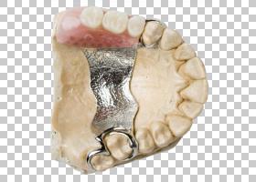 口部卡通,嘴,下颚,固定修复学,手术,美容牙科,可摘局部义齿,牙齿