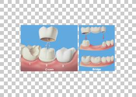 牙齿卡通,手指,嘴,钉子,手,下颚,儿童牙科,假牙,牙裂综合征,单板,