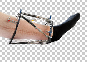 上了机械支架受伤的足部