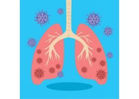 带有冠状病毒的肺部2019 NCoV插图_75011340101